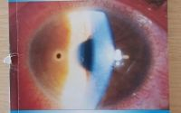 The handbook of ophthalmic emergencies